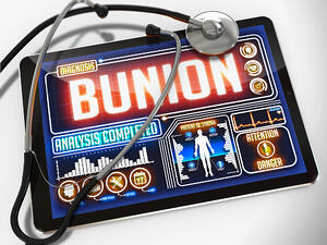 Bunion - Diagnosis on the Display of Medical Tablet and a Black Stethoscope on White Background.-1