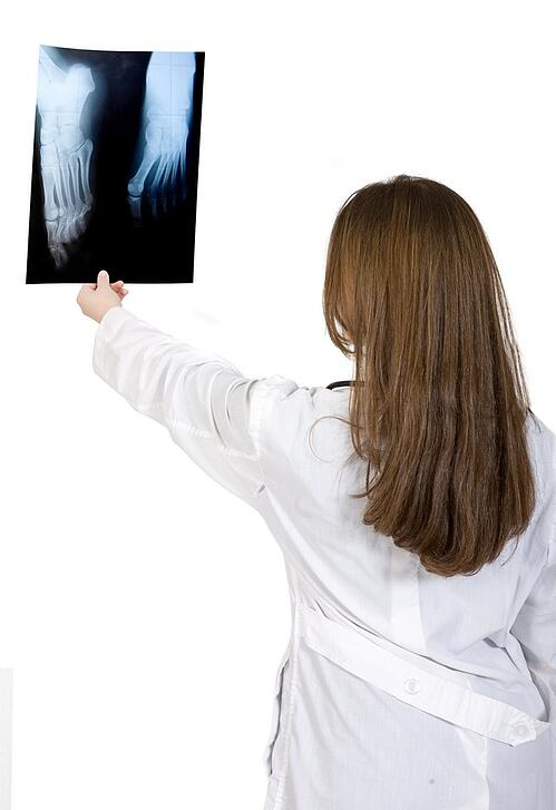 female doctor lokoking at an xray over a white background