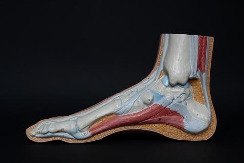 Sweeney Foot & Ankle What is Achilles Heel Pain and Tendonitis Diagram of Inside Foot