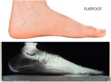 flatfoot.png