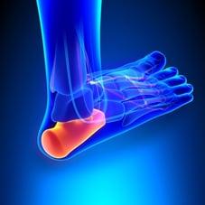 plantar foot heel pain