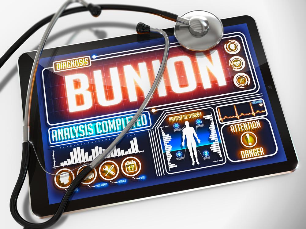 Bunions: A Basic Understanding