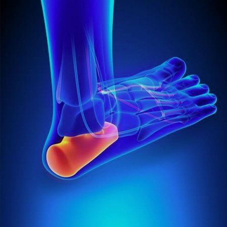 Plantar Fasciitis – Symptoms and Risk Factors