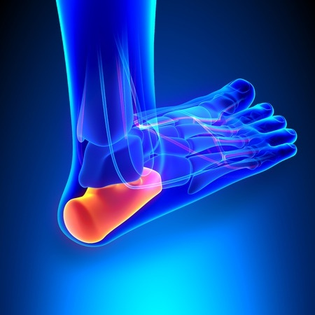 4 Ways to Treat Plantar Fasciitis
