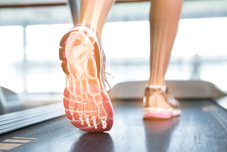 Plantar Fasciitis – Treatment Objectives